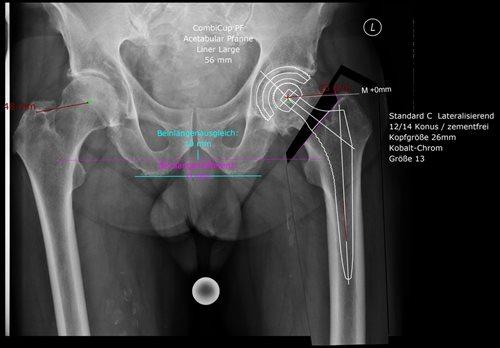 Lange krank gebärmutterentfernung vorderer plastik mit wie Scheidenvorfall nach