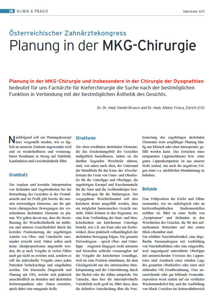 Planung in der MKG-Chirurgie