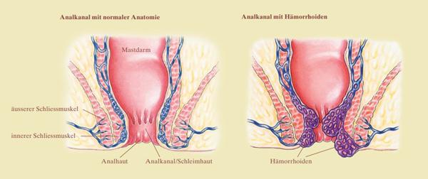 Gebärmutterentfernung stuhlgang nach Welche Beschwerden