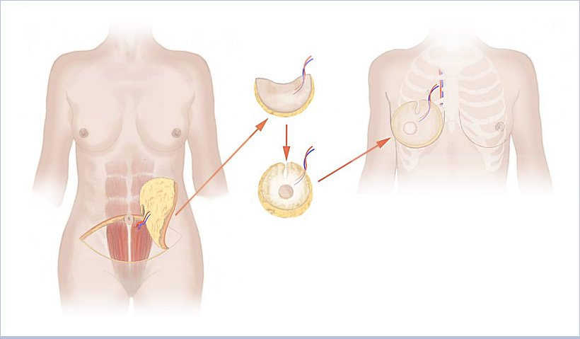 Breast reconstruction with tissue from the abdomen