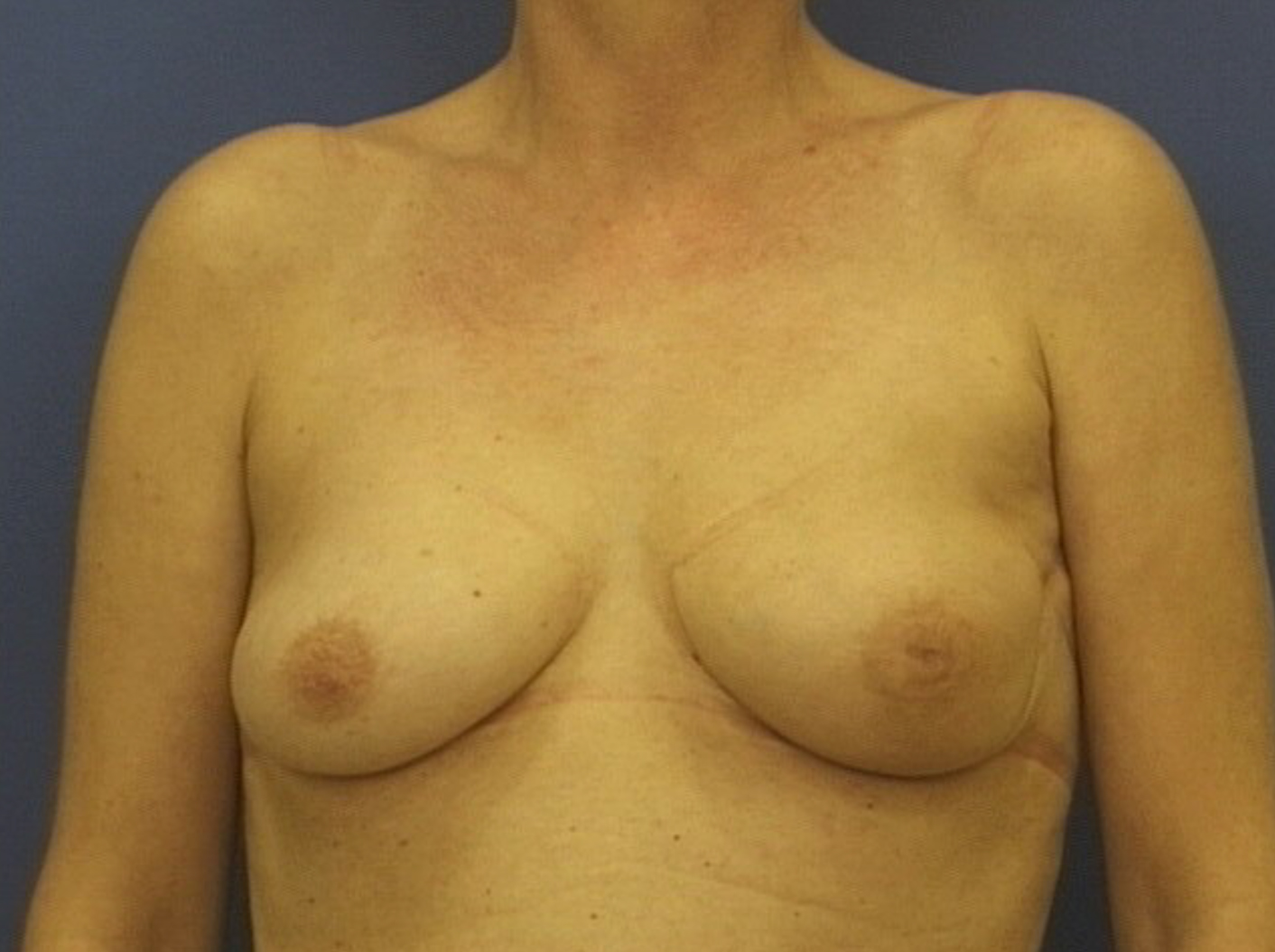 Breast-conserving surgery and radiotherapy