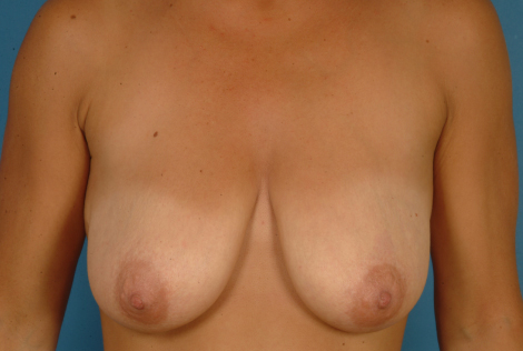 Breast-conserving surgery with plastic surgery (before radiotherapy)
