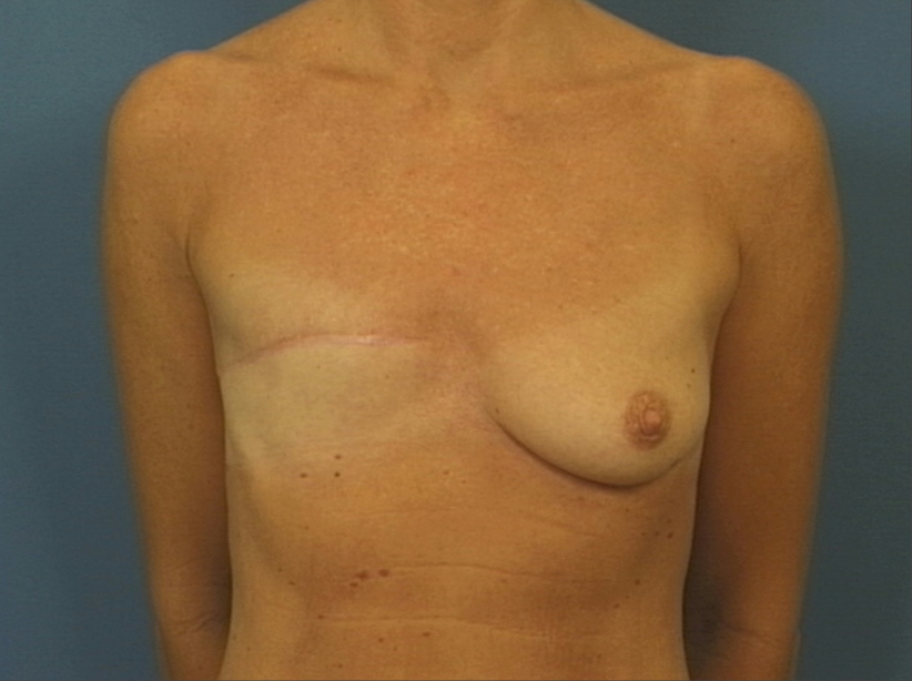 Subsequent reconstruction with latissimus dorsi (tissue from the back) and implant