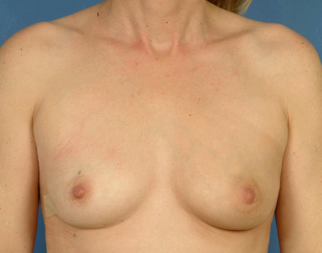 Skin-sparing mastectomy and immediate reconstruction with latissimus dorsi (tissue from the back) and implant