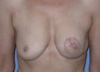 Skin-sparing mastectomy and immediate reconstruction with TMG (tissue from the groin)