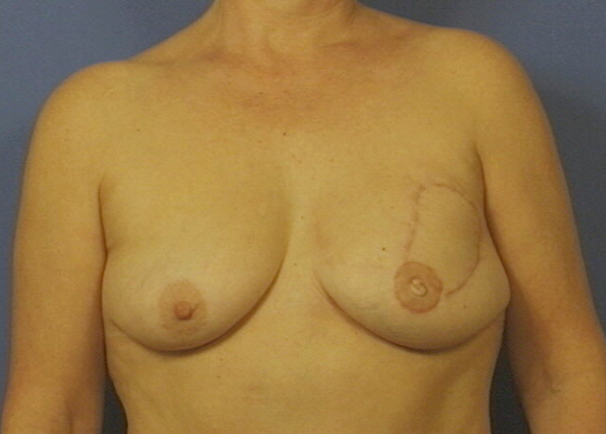 Skin-sparing mastectomy and immediate reconstruction with DIEP (tissue from the abdomen)