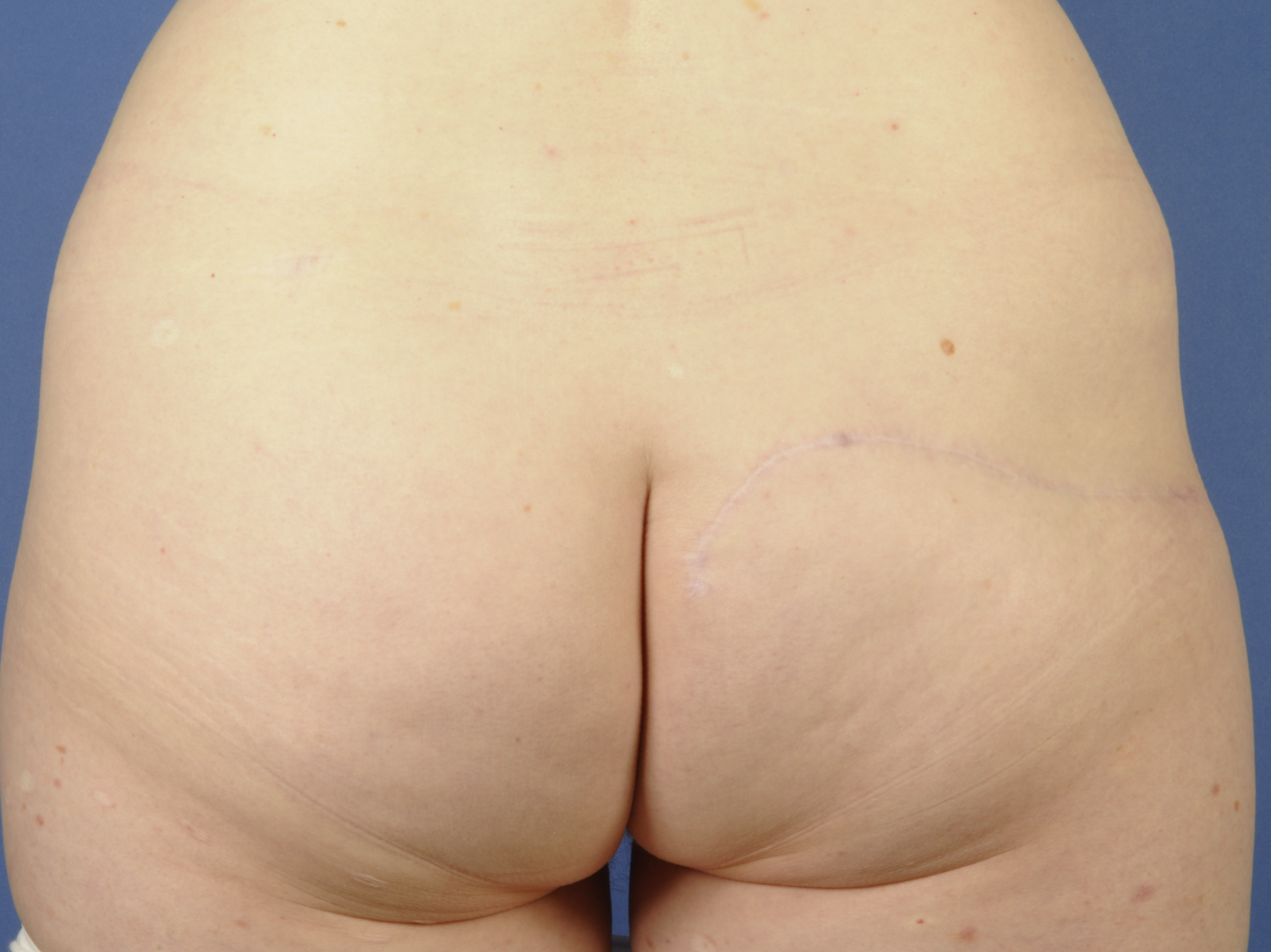 Skin-sparing mastectomy and immediate reconstruction with TMG - after