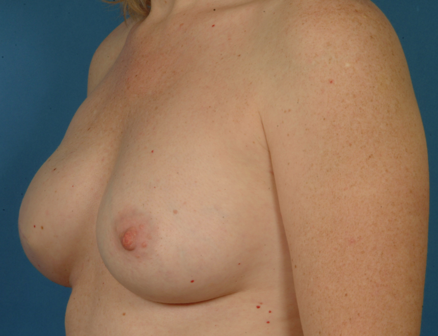Mastectomy and immediate reconstruction with implant