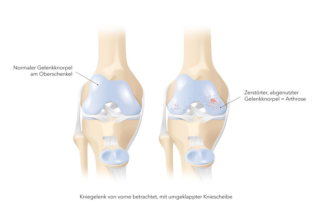 Arthrose Knie – Gonarthrose bzw. Kniegelenksarthrose