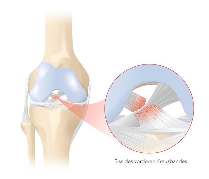 Ursache weg knie knickt Kniegelenkinstabilität