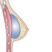 Placement of the implant above the breast muscle