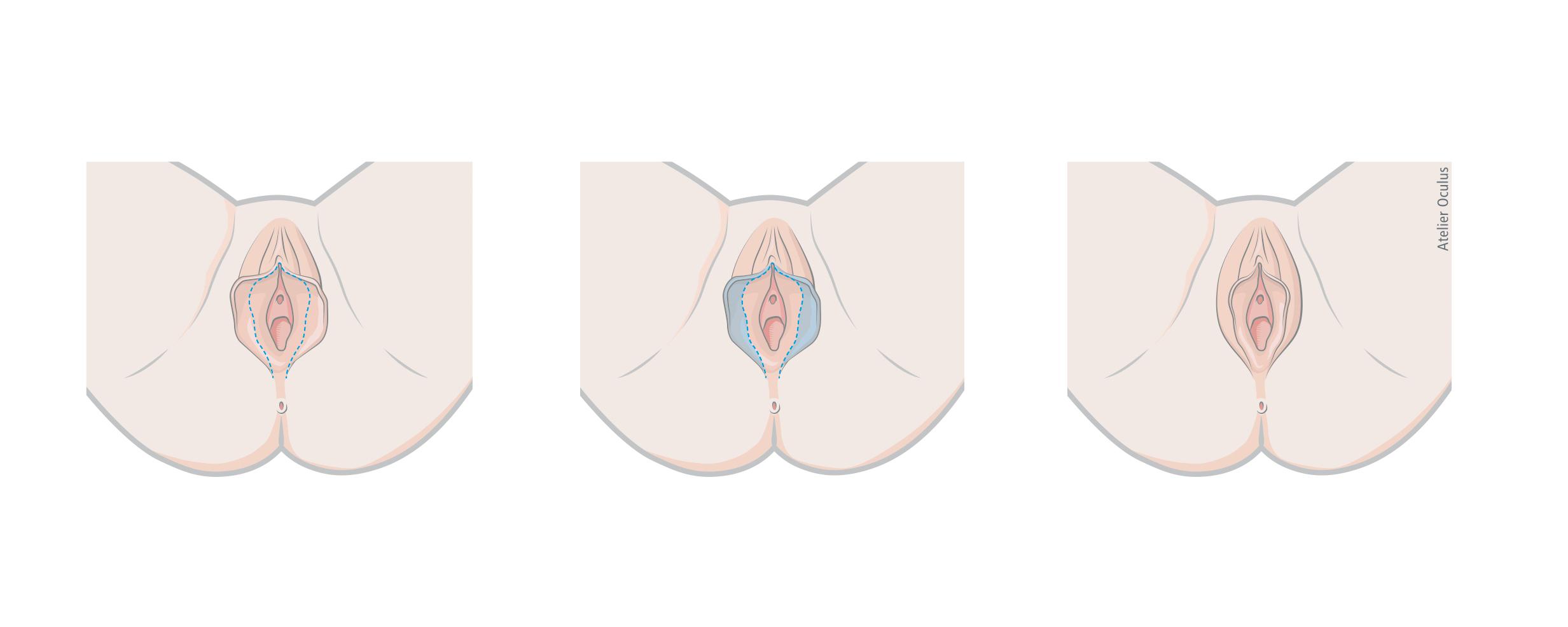Schamlippe der inneren Inneren Schamlippen